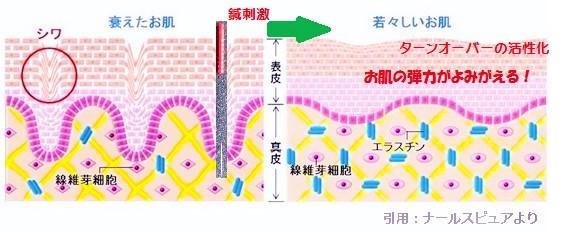 鍼によるしわ取り図4 (3)
