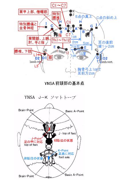 YNSA1